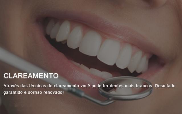 Clareamento dental - Home