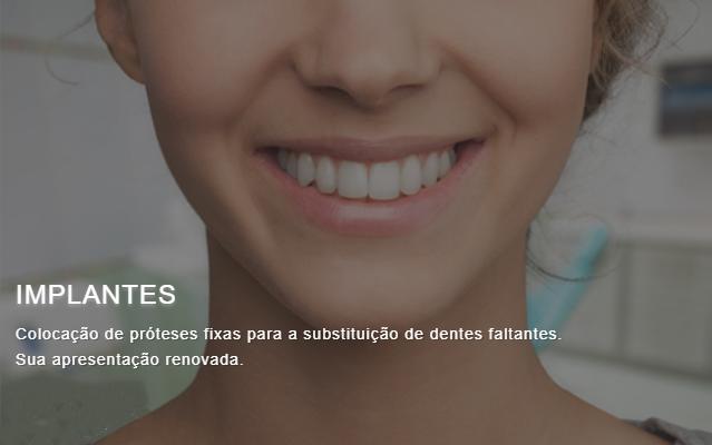 Implantes dentários - Home