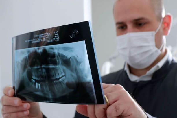 coif-implantes