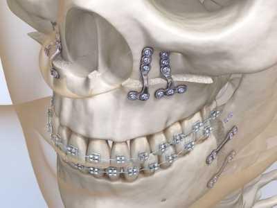 coif-tratamentos-cirurgia-0003