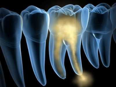 coif-tratamentos-endodontia-0002