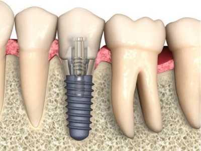coif-tratamentos-implantes-0002