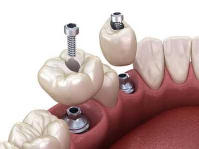 coif-tratamentos-implantes-0003