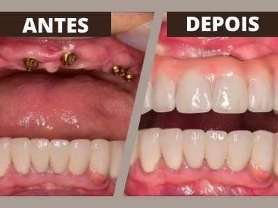 coif-tratamentos-implantes-0004