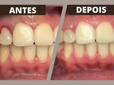 coif-tratamentos-periodontia-0002