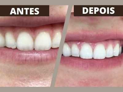 coif-tratamentos-periodontia-0003