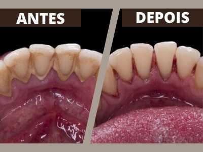 coif-tratamentos-periodontia-0004