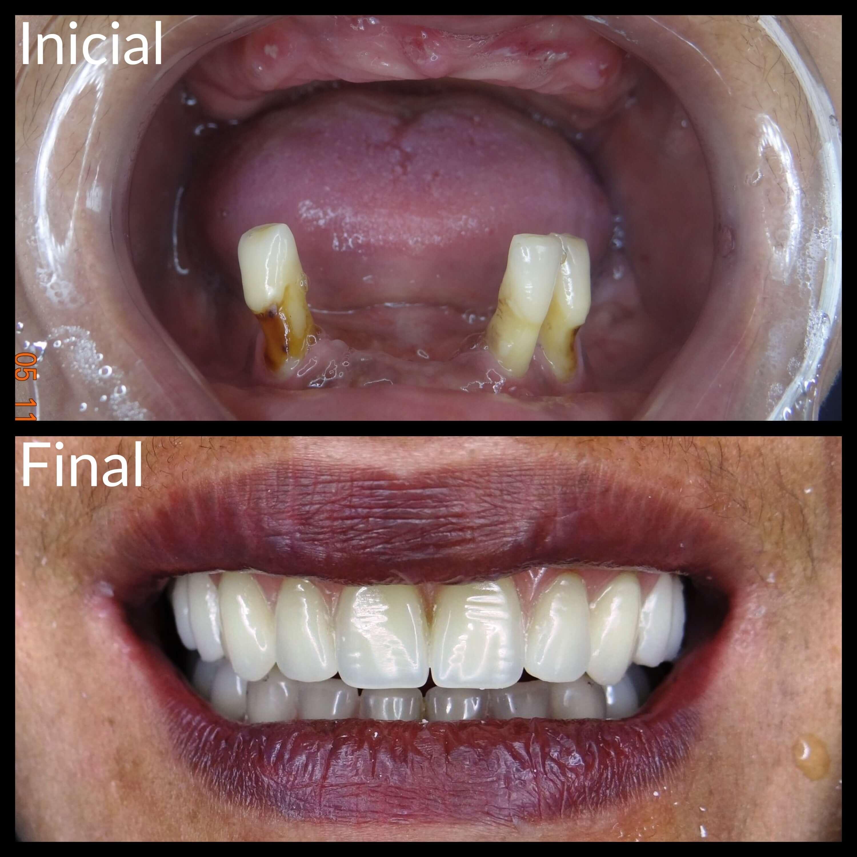 Implantodontia