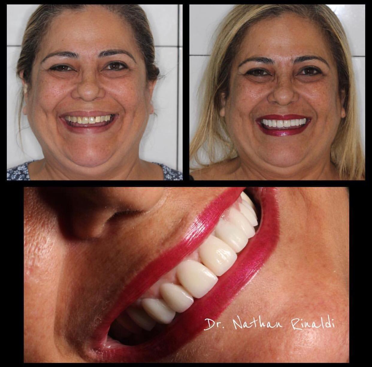 Estética – Lentes de Contato Dentais